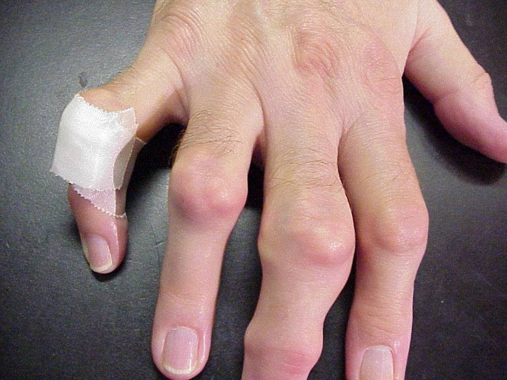 gout-Tophi-on-Hands