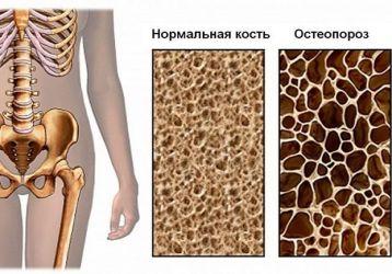 Питание и диета при остеопорозе у женщин и мужчин: что можно и что нельзя есть