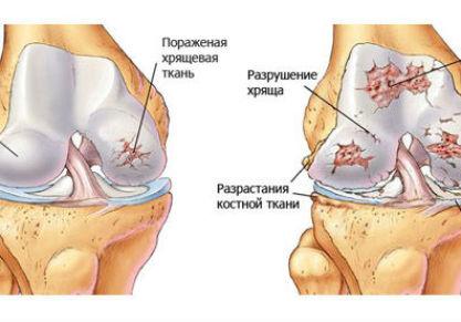 Что такое хондропатия коленного сустава: основные методы диагностики и лечения