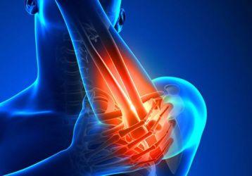 Артроз локтевого сустава: причины, симптомы, лечение, диагностика, полное описание болезни