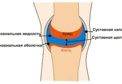 Жидкость в коленном суставе: функции и свойства