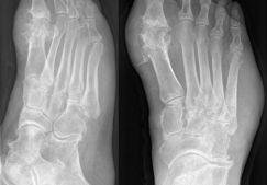 Артрит суставов стопы: симптомы, причины, как лечить заболевание