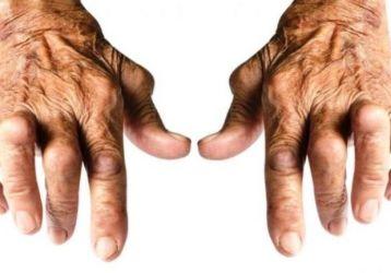 Чем лечить ревматоидный серонегативный артрит: симптомы, диагностика, лучшие медикаменты