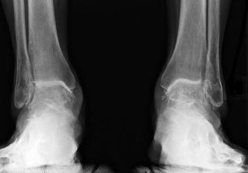 Лечение в домашних условиях артроза голеностопного сустава