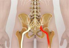Защемление нерва в тазобедренном суставе: причины, симптомы и лечение ущемления