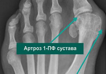 Особенности диагностики и лечения остеоартроза суставов стопы
