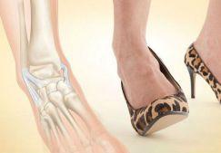 Растяжение связок стопы: лечение, причины, симптомы, что делать при растяжении