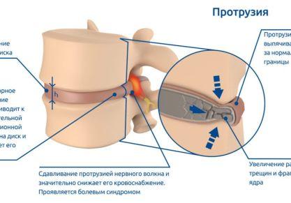 Что такое протрузия дисков позвоночника: виды, симптомы, методы лечения патологии