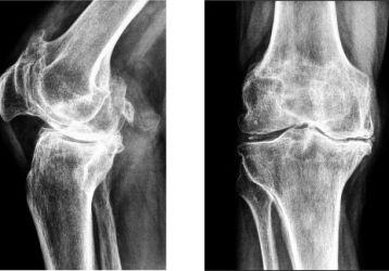 Массаж при артрозе коленного сустава: как правильно выполнять, виды, противопоказания