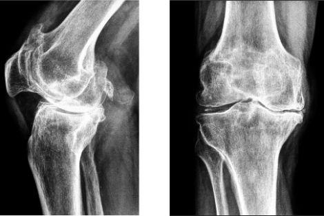 Что такое гонартроз коленных суставов — лечение, симптомы, причины заболевания