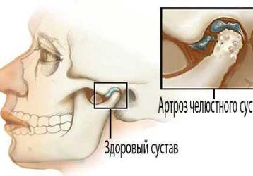 Артроз височно-нижнечелюстного сустава: симптомы и лечение заболевания. Лекарства и операция.