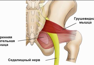 Синдром грушевидной мышцы: симптомы и лечение