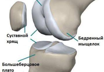 Пателлофеморальный артроз коленного сустава: симптомы и лечение