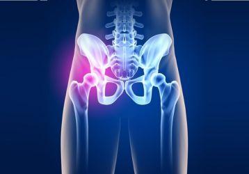 Артрит тазобедренного сустава: симптомы и лечение у детей и взрослых, полное описание болезни