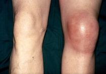 Симптомы и лечение артрита коленного сустава — полное описание и особенности заболевания