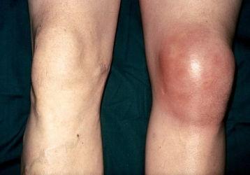 Что делать, если опухло колено без ушиба и болит: диагнозы и способы лечения