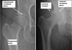 Что такое коксартроз тазобедренного сустава и как его лечить, симптомы, полное описание заболевания