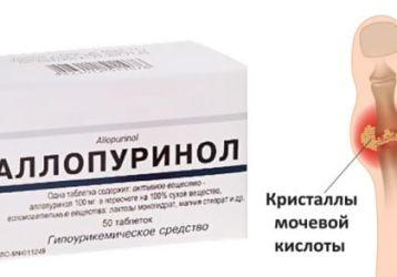 Как принимать Аллопуринол при подагре: показания, противопоказания, дозировка