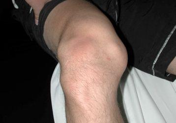 Вывих коленного сустава: симптомы и лечение вывиха колена и коленной чашечки