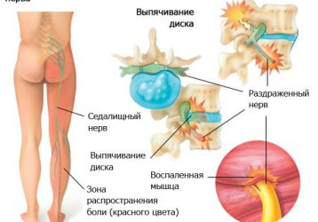 Как и чем лечить прострел в пояснице: причины острой боли, методы лечения