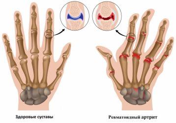 Диагностика ревматоидного артрита: дифференциальные, лабораторные и инструментальные методы