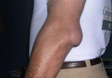 Бурсит локтевого сустава — лечение в домашних условиях народными средствами