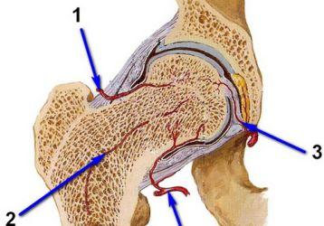 Замена тазобедренного сустава: цена операции, импланта и реабилитации