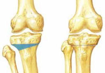 Корригирующая остеотомия: описание, особенности выполнения, возможные осложнения