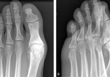 Артроз плюснефалангового сустава: причины возникновения, способы диагностики и лечения