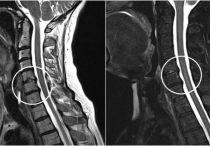 Лечение шейного остеохондроза у женщин, симптомы и признаки заболевания