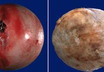 Список отличий артрита от артроза: разница симптомов и лечения