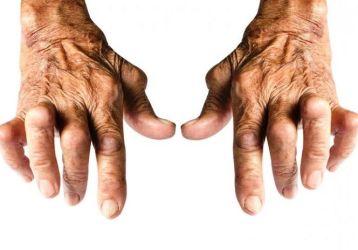 Серопозитивный ревматоидный артрит: что такое, симптомы и лечение