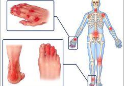 Псориатический артрит: симптомы и лечение, фото, причины, классификация