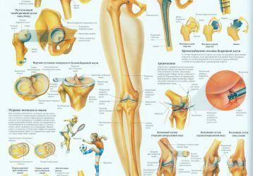 Если болят и хрустят колени, как лечиться?