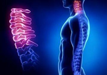 Все признаки и симптомы остеохондроза шейного отдела позвоночника