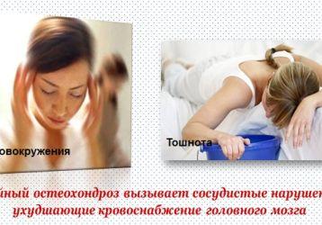 Почему появляется тошнота при остеохондрозе: причины и схемы лечения