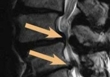 Виды, преимущества и недостатки иглоукалывания при грыже позвоночника