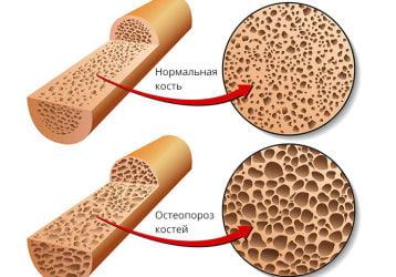Массаж при остеопорозе позвоночника и костей: польза и вред. Основные техники
