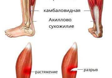 Что делать при растяжении мышц на ноге: симптомы травмирования, методики лечения