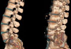 Остеохондроз — симптомы, лечение, признаки, полное описание заболевания