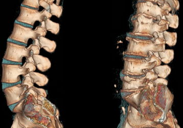 Причины, диагностика и лечение слабости в ногах при остеохондрозе