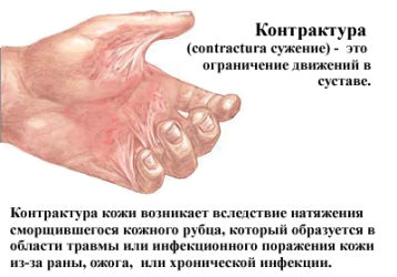 Какими бывают контрактуры и как с ними бороться: симптомы и методы лечения