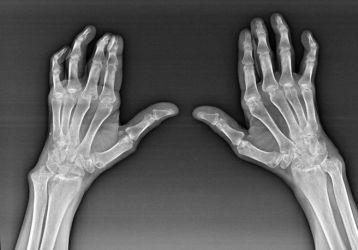 Артроз кисти рук и его лечение, причины и симптомы заболевания