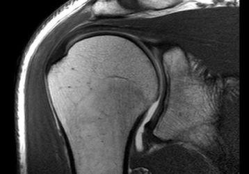 МРТ плечевого сустава — как делают и расшифровка результатов