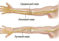 Почему немеет левая рука от локтя до пальцев: способы лечения