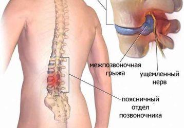 Причины и разновидности дорзальной грыжи диска — диагностика и лечение