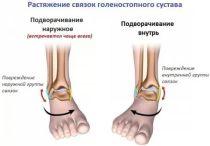 Растяжение связок голеностопного сустава: лечение, причины, симптомы, полное описание травмы