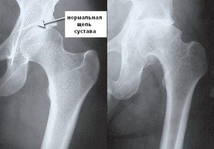 Чем опасно разрушение тазобедренного сустава: признаки и симптомы, тактика лечения