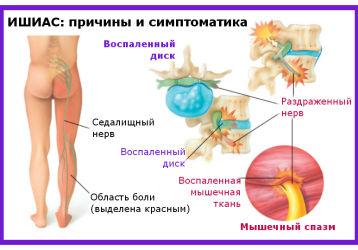 Рецепты народной медицины для лечения ишиаса в домашних условиях