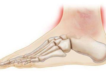 Ушиб голеностопного сустава: основные признаки, первая помощь, тактика лечения